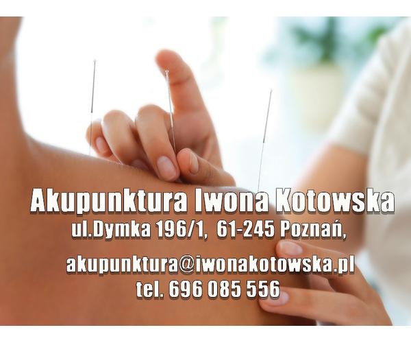 Akupunktura Iwona Kotowska
